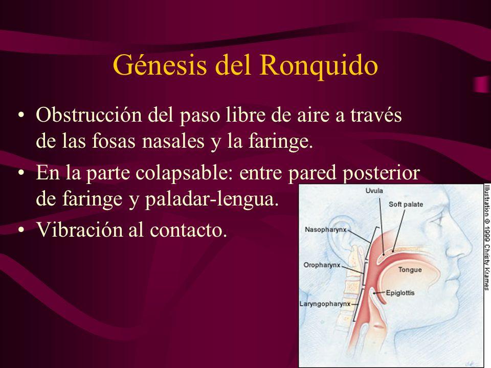Génesis del Ronquido Obstrucción del paso libre de aire a través de las fosas nasales y la faringe.
