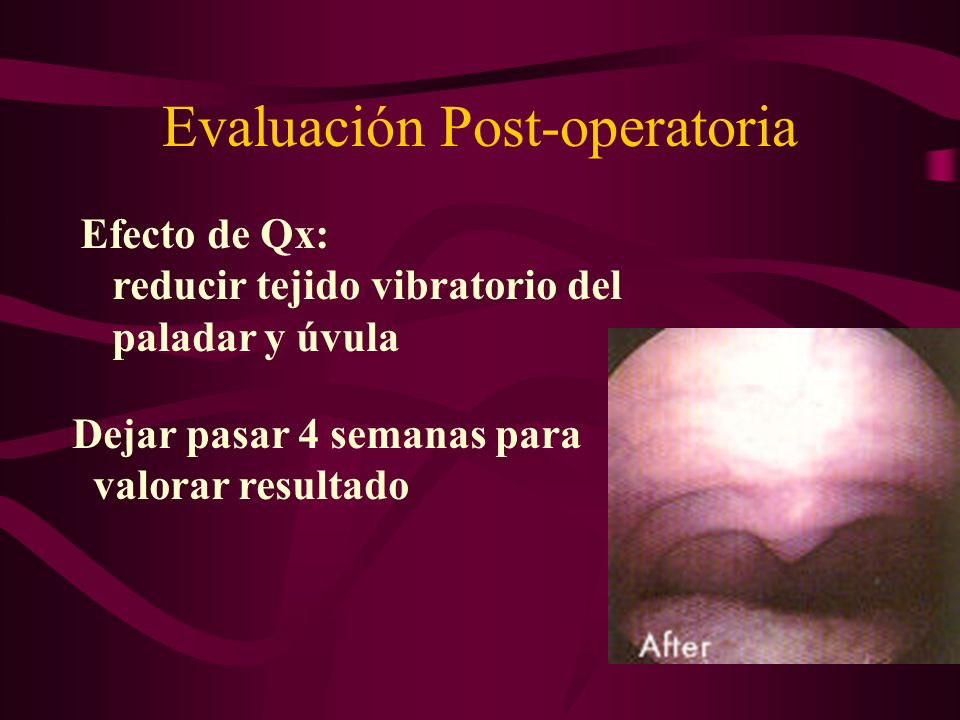 Evaluación Post-operatoria