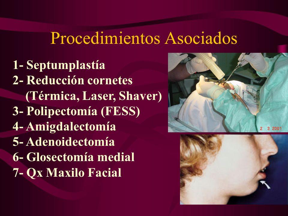 Procedimientos Asociados
