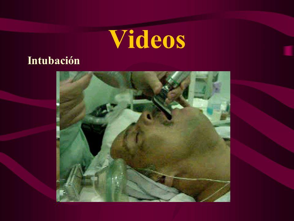 Videos Intubación
