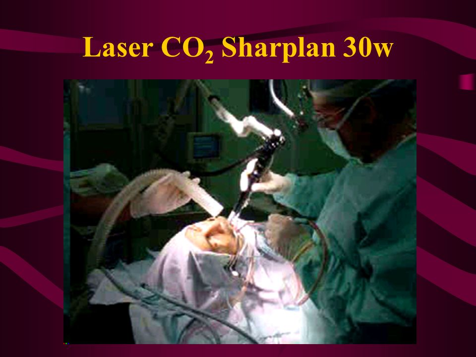Laser CO2 Sharplan 30w
