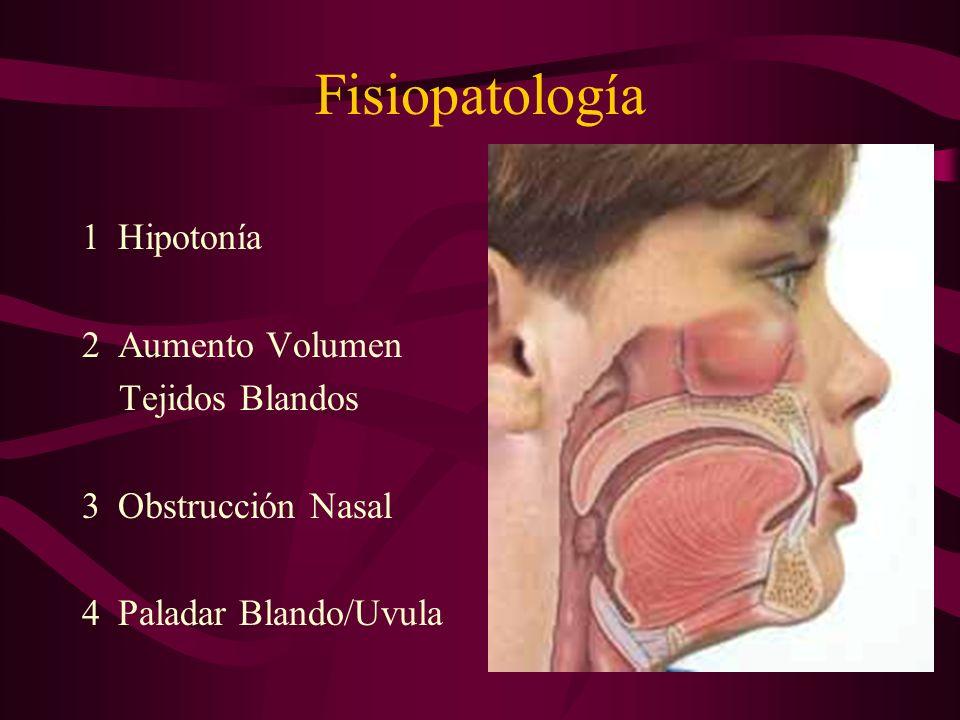 Fisiopatología Hipotonía Aumento Volumen Tejidos Blandos