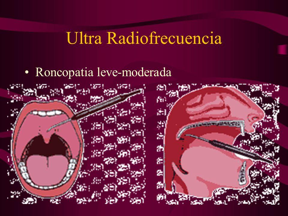 Ultra Radiofrecuencia