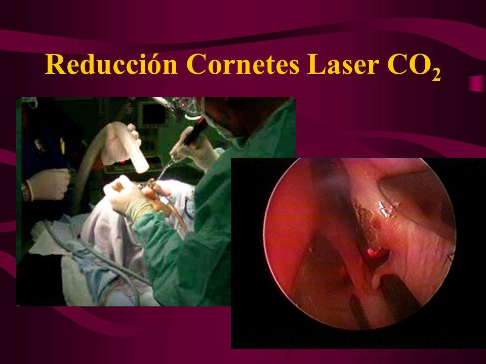 Reducción Cornetes Laser CO2