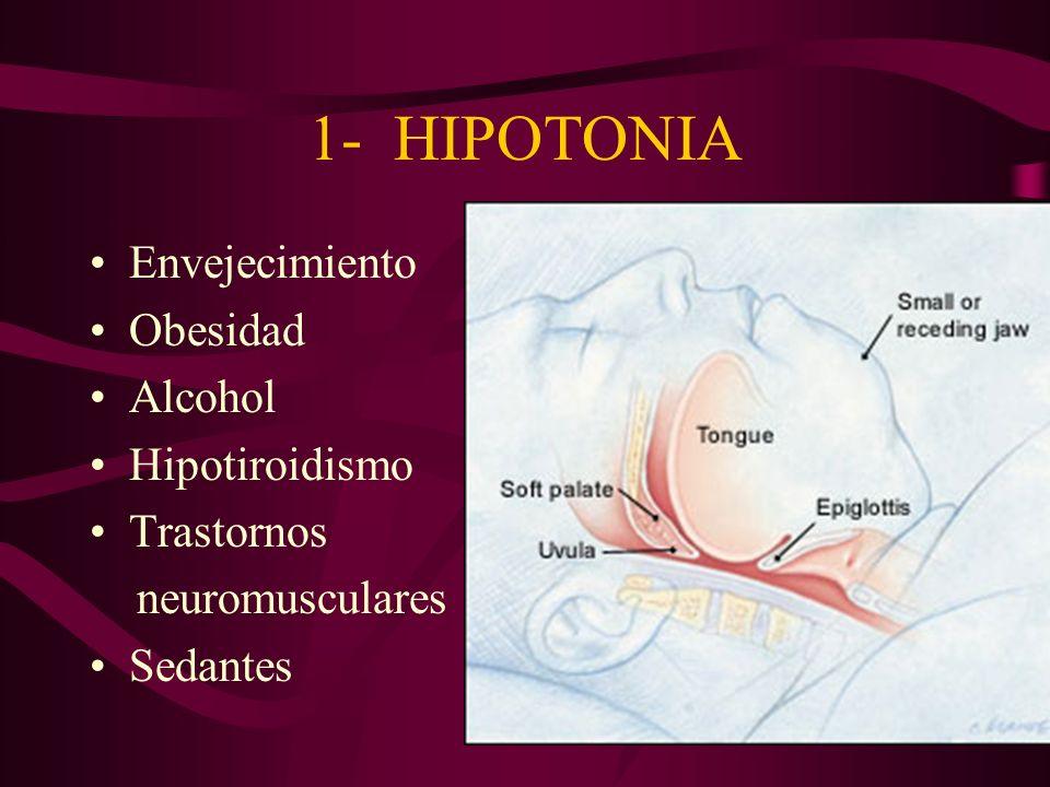 1- HIPOTONIA Envejecimiento Obesidad Alcohol Hipotiroidismo Trastornos