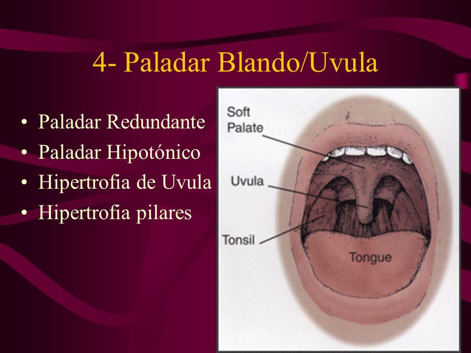 4- Paladar Blando/Uvula