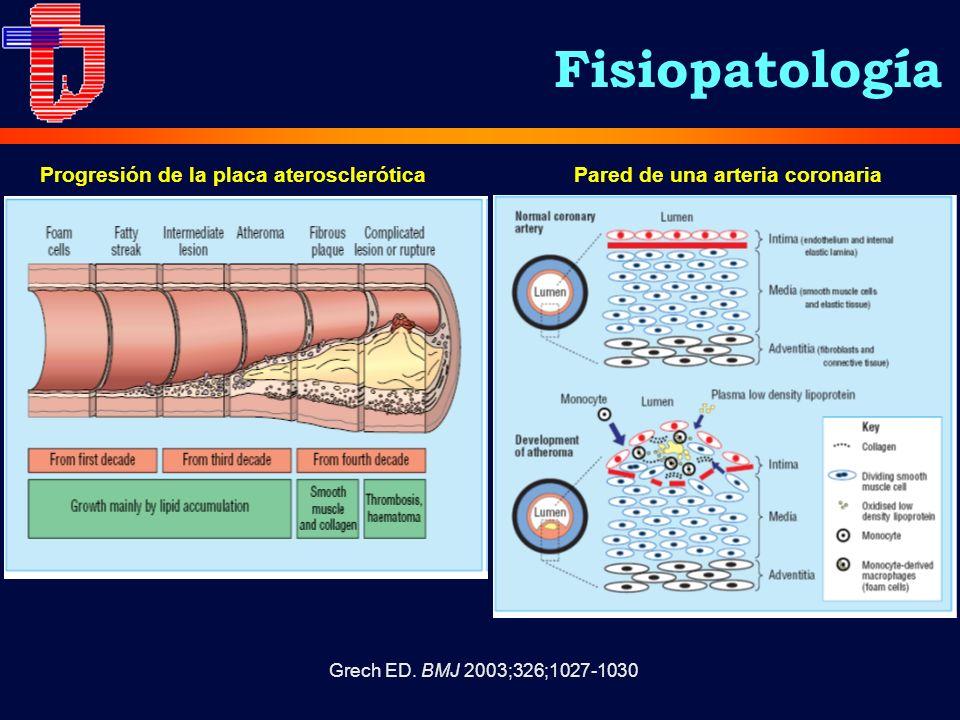 Progresión de la placa aterosclerótica Pared de una arteria coronaria