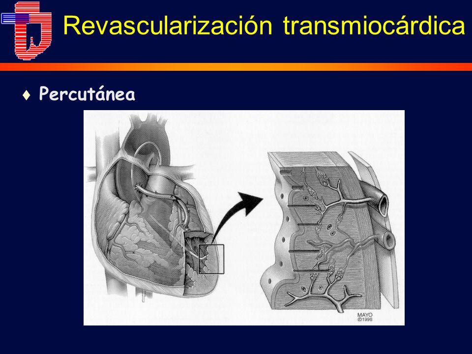 Revascularización transmiocárdica