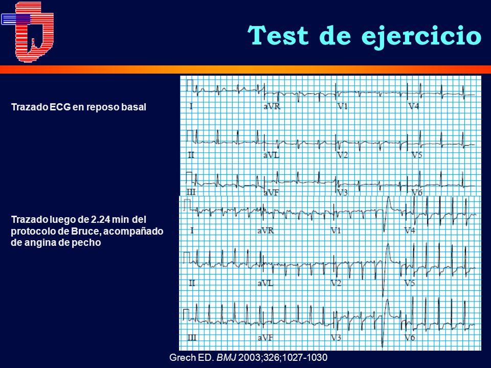 Test de ejercicio Trazado ECG en reposo basal