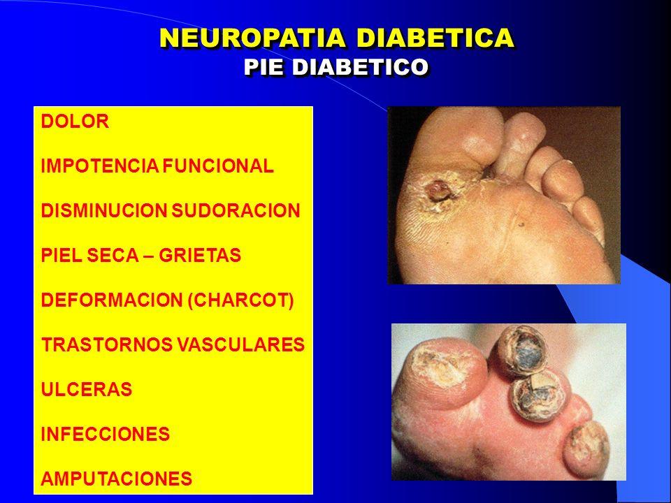NEUROPATIA DIABETICA PIE DIABETICO DOLOR IMPOTENCIA FUNCIONAL