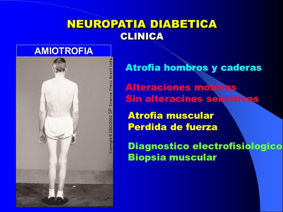 NEUROPATIA DIABETICA CLINICA AMIOTROFIA Atrofia hombros y caderas