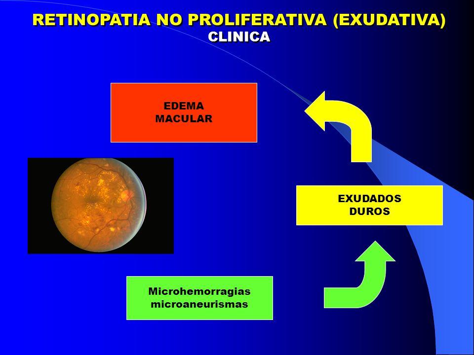 RETINOPATIA NO PROLIFERATIVA (EXUDATIVA)