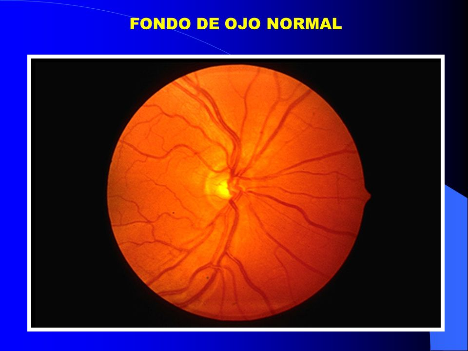 FONDO DE OJO NORMAL