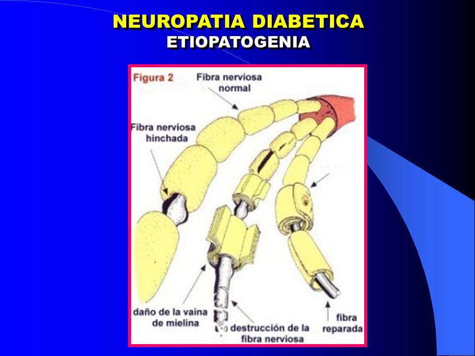 NEUROPATIA DIABETICA ETIOPATOGENIA