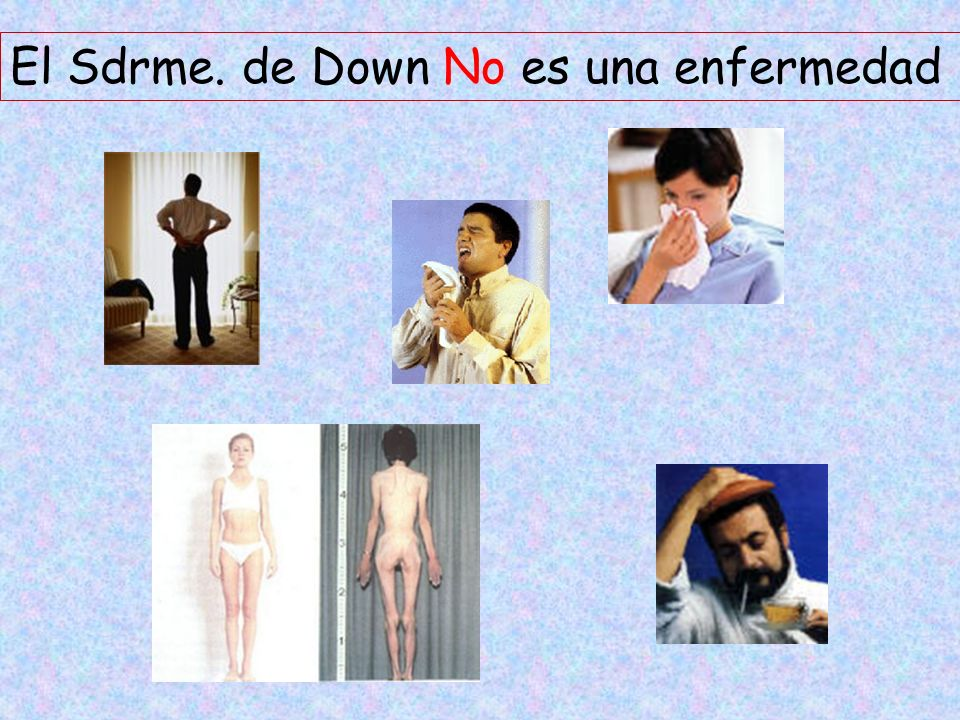 El Sdrme. de Down No es una enfermedad