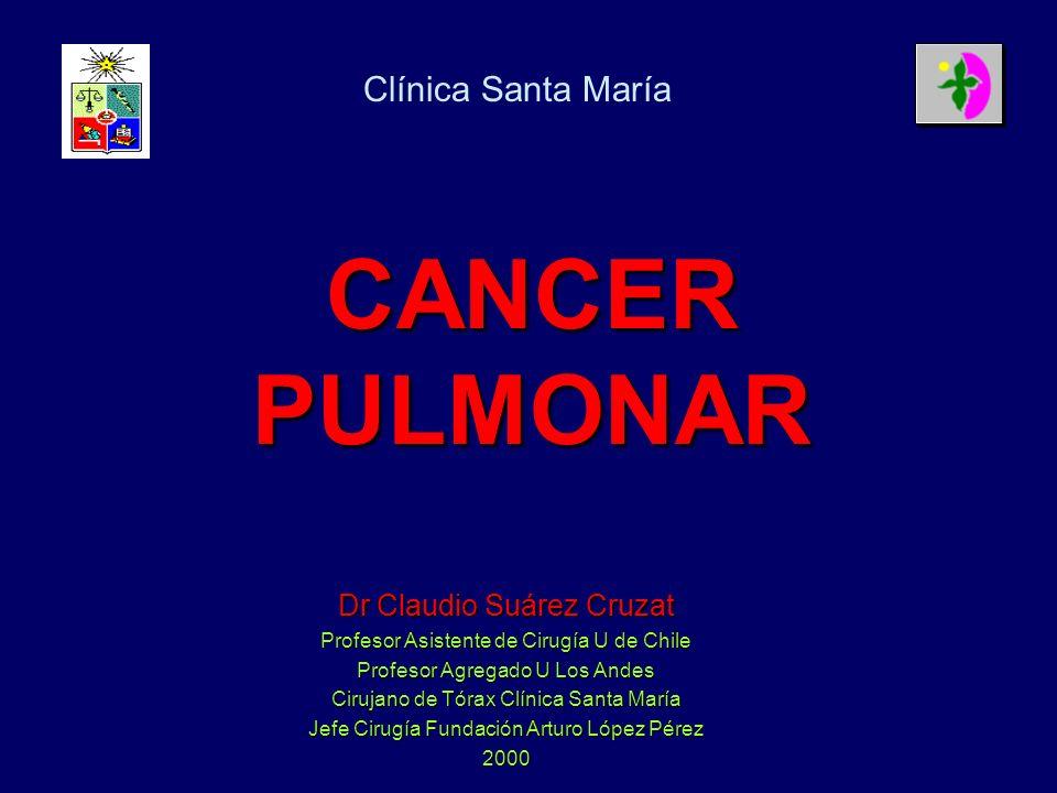 CANCER PULMONAR Clínica Santa María Dr Claudio Suárez Cruzat
