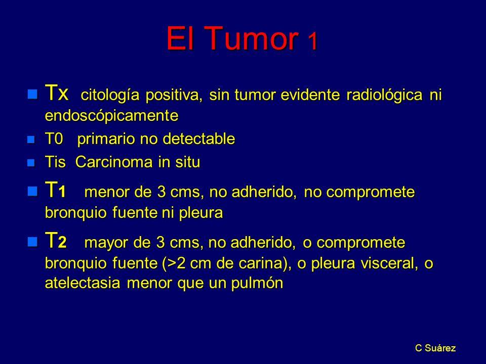 El Tumor 1 Tx citología positiva, sin tumor evidente radiológica ni endoscópicamente. T0 primario no detectable.