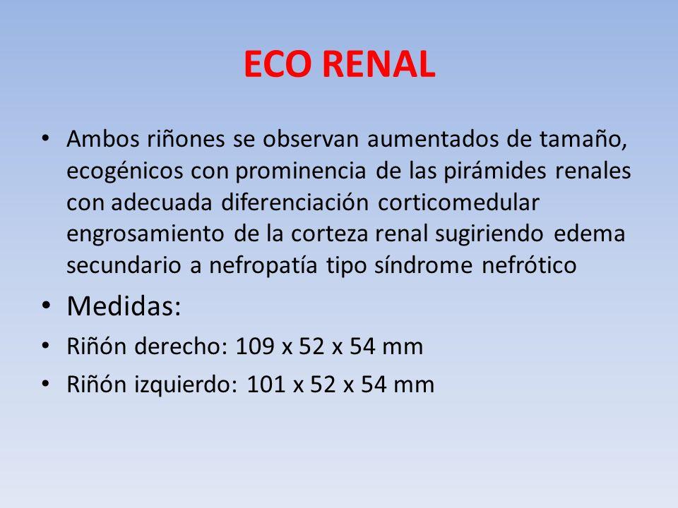 ECO RENAL