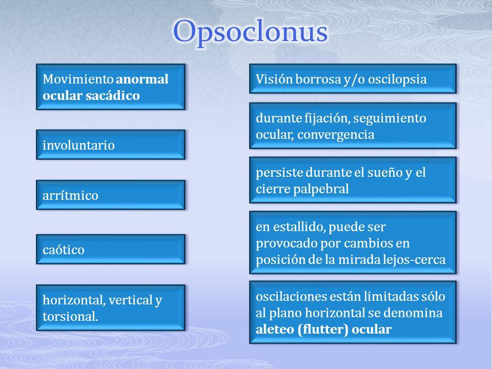 Opsoclonus Movimiento anormal ocular sacádico