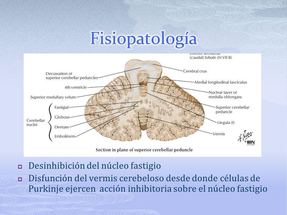 Fisiopatología Desinhibición del núcleo fastigio