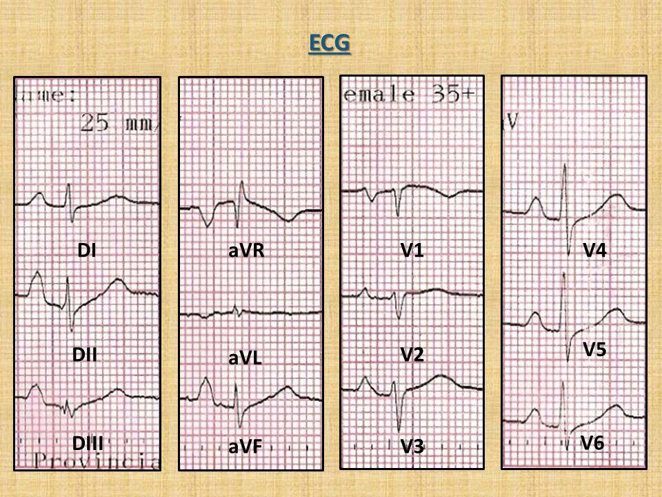 ECG DI aVR V1 V4 V5 DII aVL V2 DIII aVF V3 V6