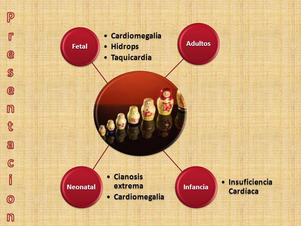 Presentacion Fetal Cardiomegalia Hidrops Taquicardia Neonatal