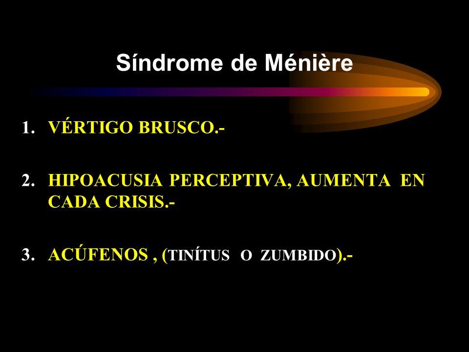 Síndrome de Ménière VÉRTIGO BRUSCO.-