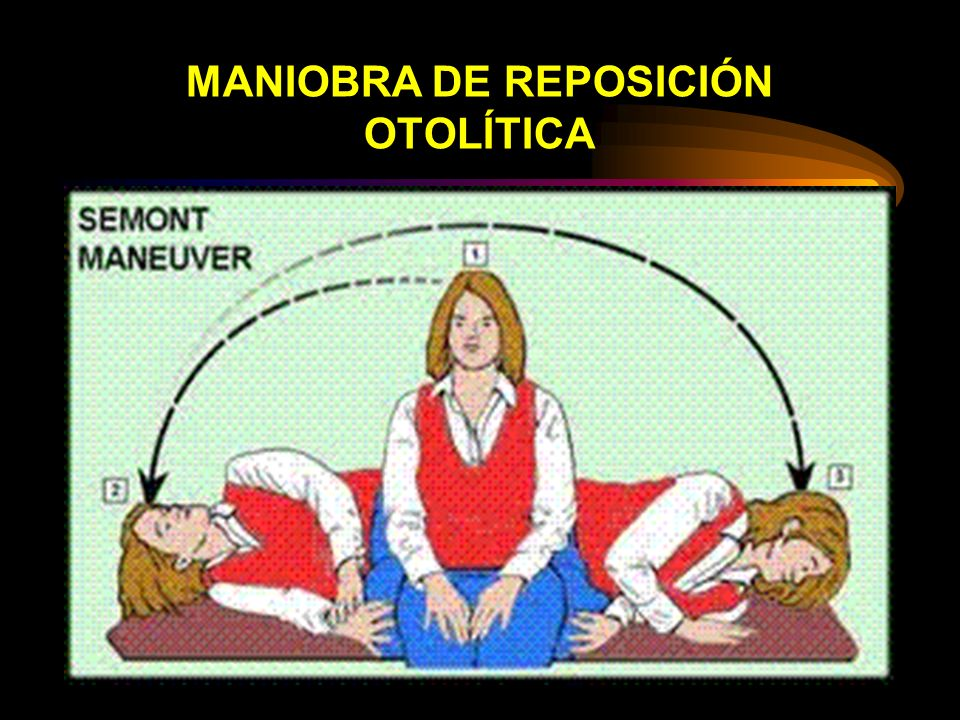 MANIOBRA DE REPOSICIÓN OTOLÍTICA