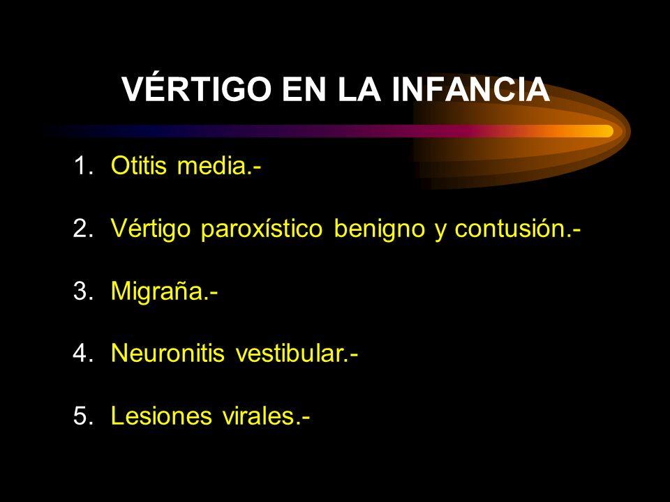 VÉRTIGO EN LA INFANCIA Otitis media.-