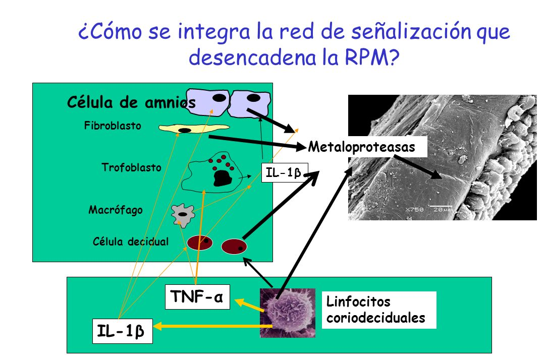 ¿Cómo se integra la red de señalización que desencadena la RPM