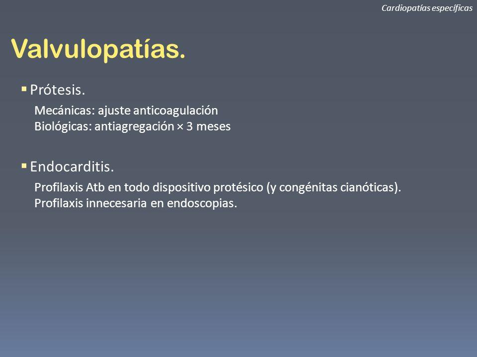 Valvulopatías. Prótesis. Endocarditis.