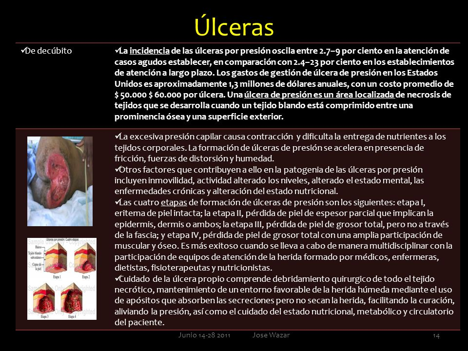 Úlceras De decúbito.
