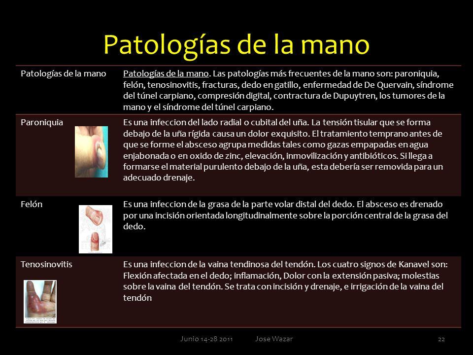 Patologías de la mano Patologías de la mano
