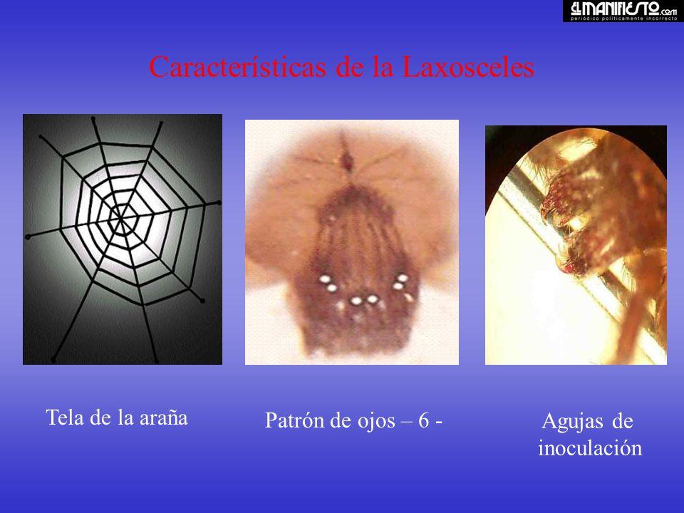 Características de la Laxosceles