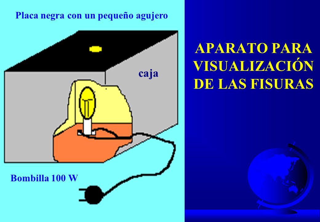 APARATO PARA VISUALIZACIÓN DE LAS FISURAS