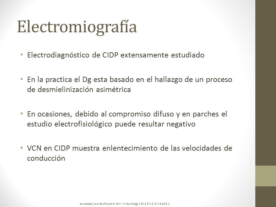Electromiografía Electrodiagnóstico de CIDP extensamente estudiado