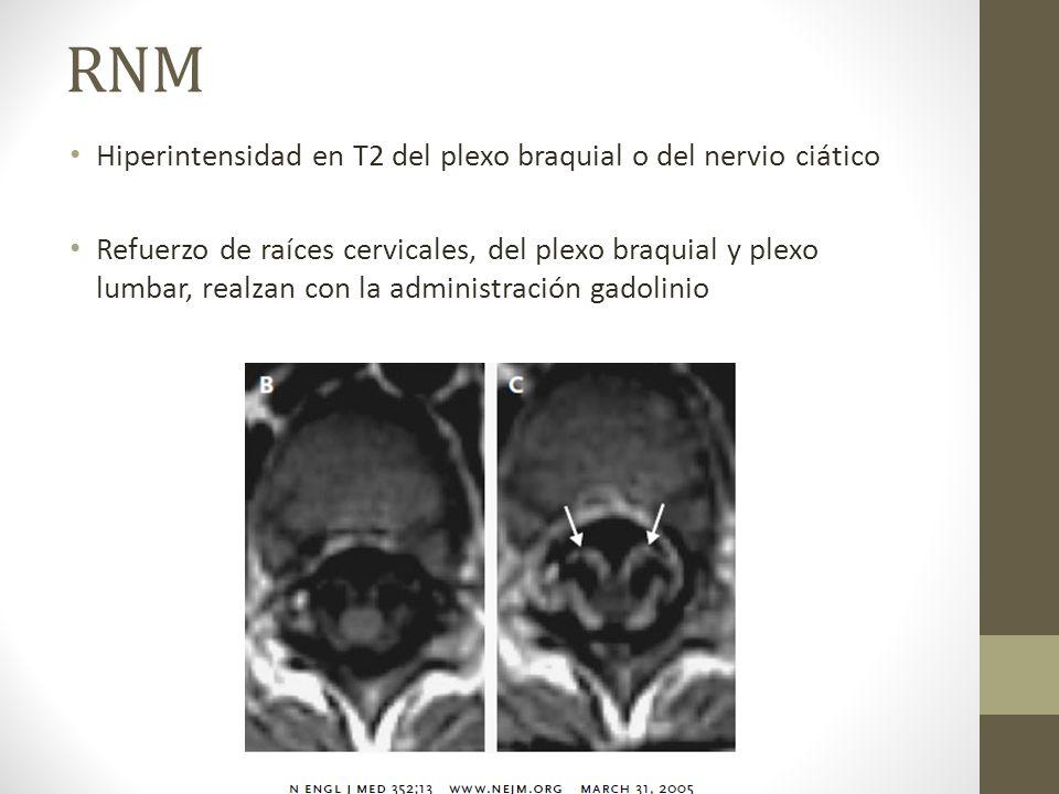 RNM Hiperintensidad en T2 del plexo braquial o del nervio ciático