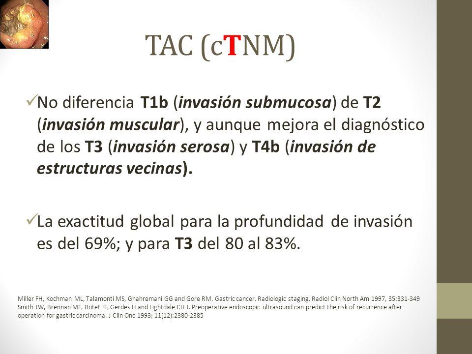 TAC (cTNM)