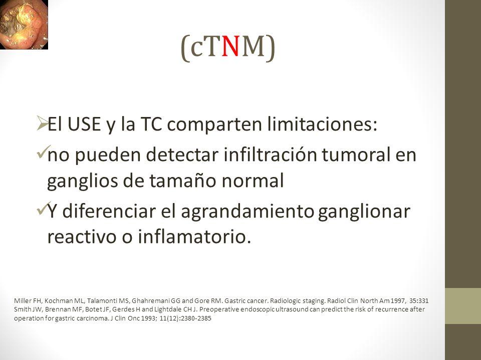 (cTNM) El USE y la TC comparten limitaciones: