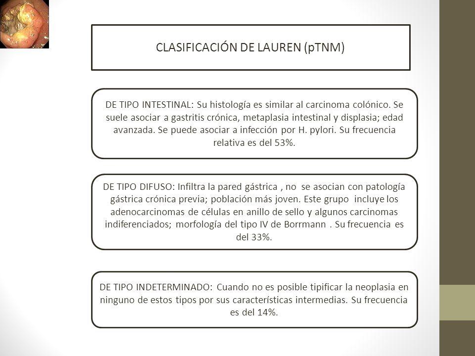 CLASIFICACIÓN DE LAUREN (pTNM)