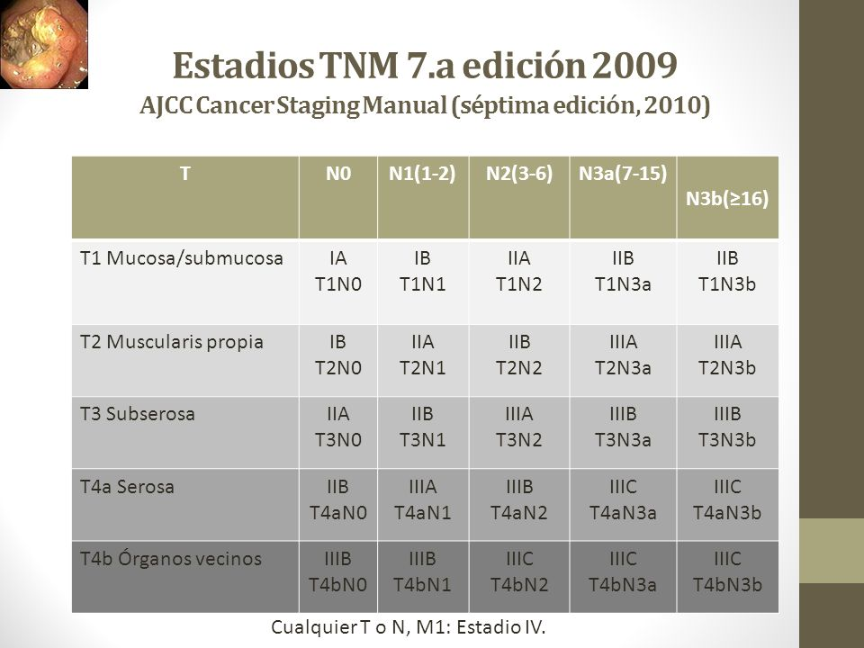 Estadios TNM 7.a edición 2009 AJCC Cancer Staging Manual (séptima edición, 2010)