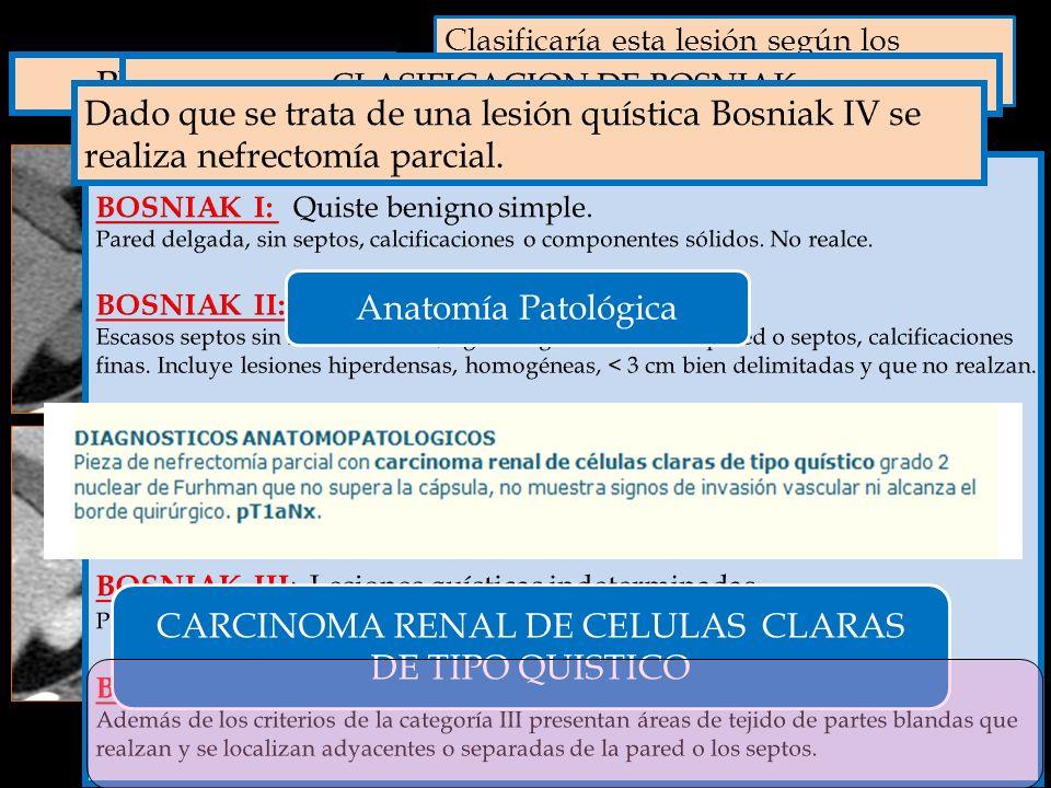 CARCINOMA RENAL DE CELULAS CLARAS DE TIPO QUISTICO A. Bosniak I