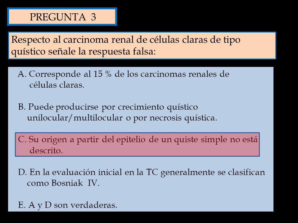 PREGUNTA 3 Respecto al carcinoma renal de células claras de tipo quístico señale la respuesta falsa: