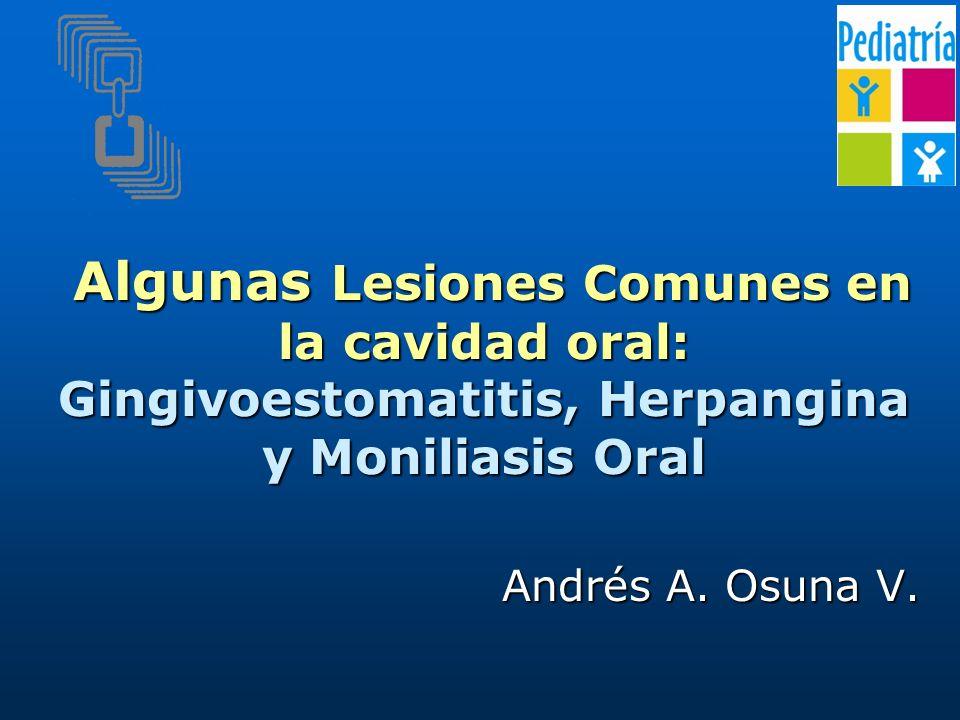 Algunas Lesiones Comunes en la cavidad oral: Gingivoestomatitis, Herpangina y Moniliasis Oral