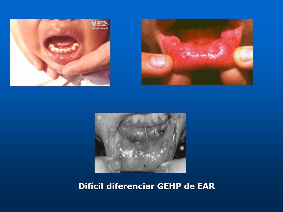 Difícil diferenciar GEHP de EAR