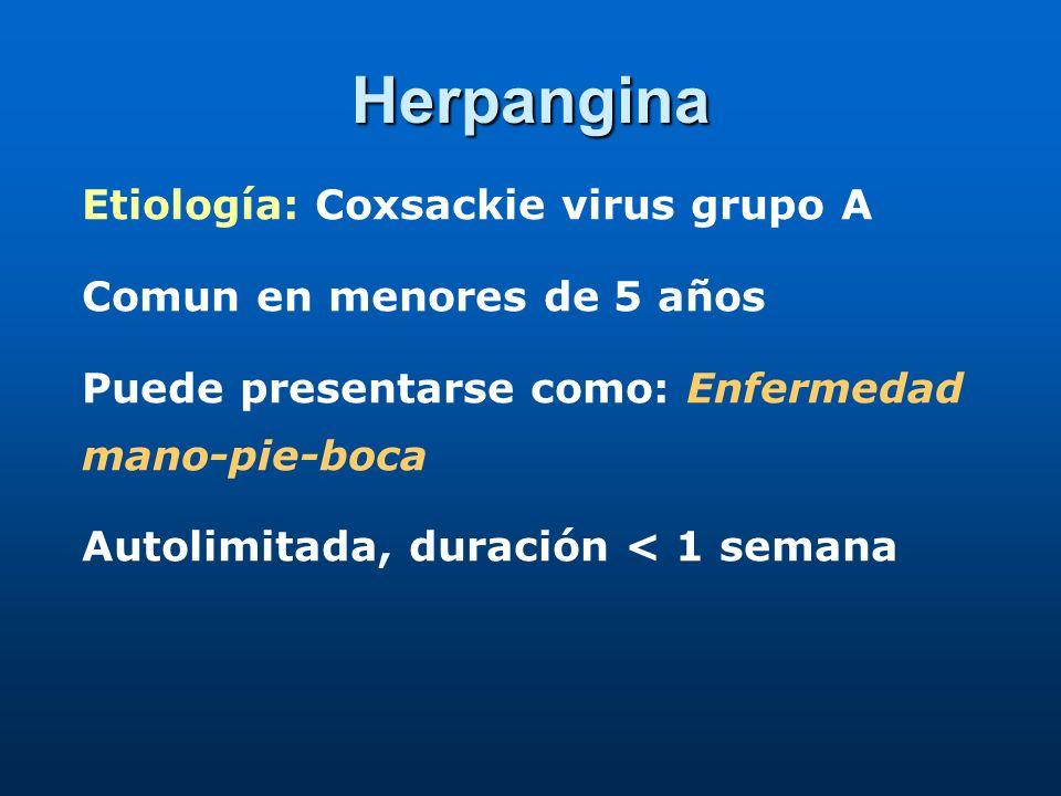 Herpangina Etiología: Coxsackie virus grupo A