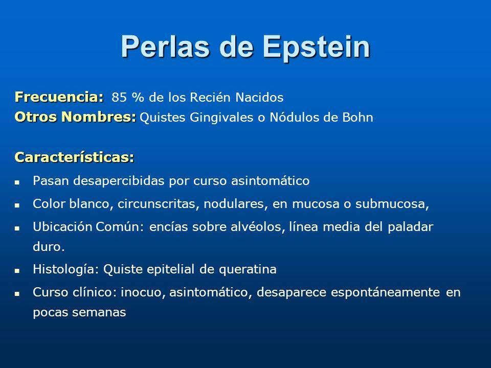 Perlas de Epstein Frecuencia: 85 % de los Recién Nacidos