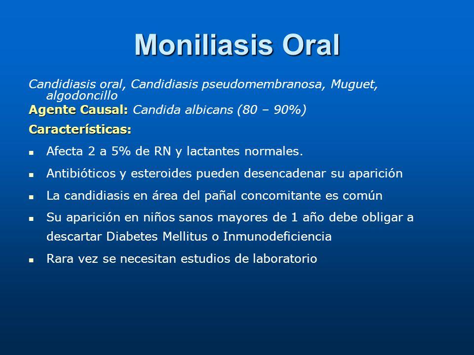 Moniliasis Oral Candidiasis oral, Candidiasis pseudomembranosa, Muguet, algodoncillo. Agente Causal: Candida albicans (80 – 90%)