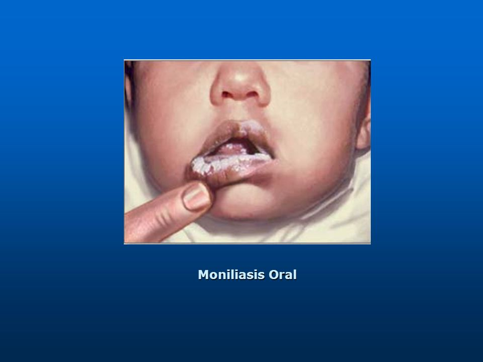Moniliasis Oral