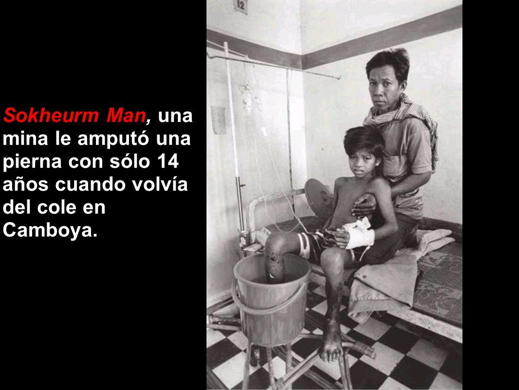 Sokheurm Man, una mina le amputó una pierna con sólo 14 años cuando volvía del cole en Camboya.